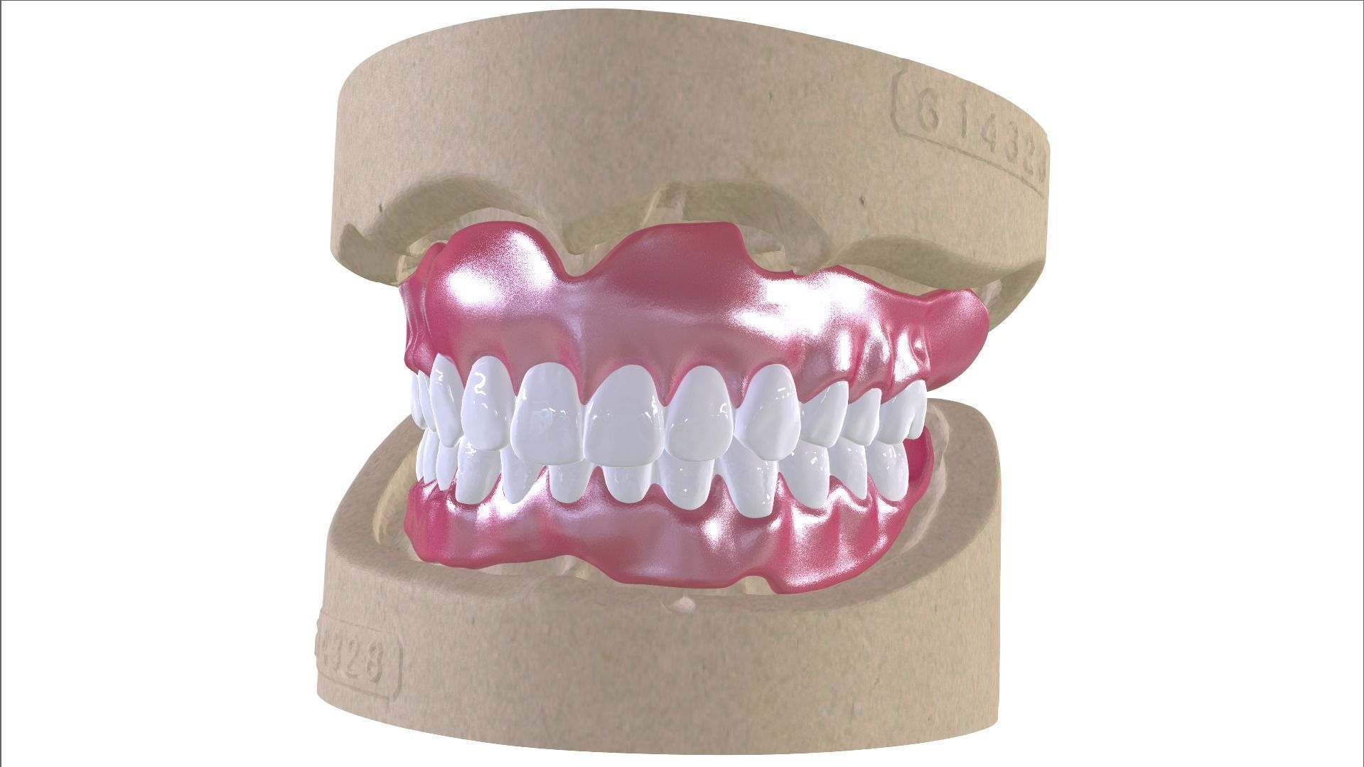 Digital Full Dentures with Combined Glue-in Teeth Arch