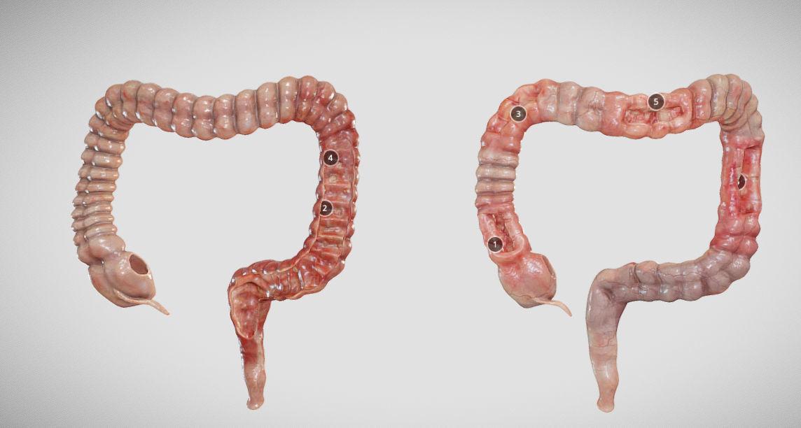 Ulcerative Colitis vs Crohn Disease