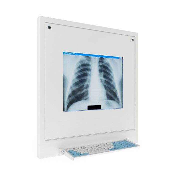 Model X Ray Display