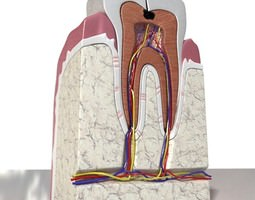 3D Cracked Tooth High Detail