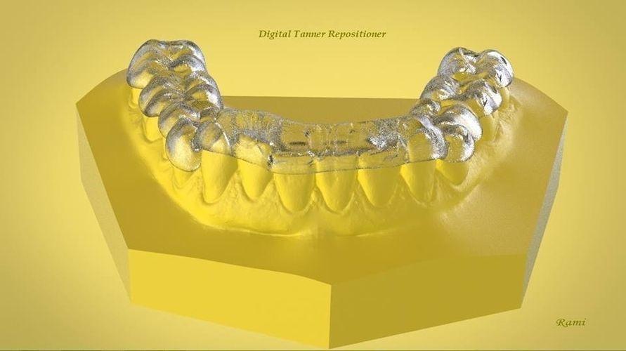 Digital Ortho Tanner Repositioner