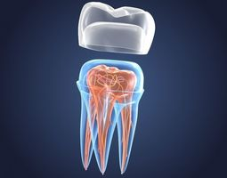 3D model Transparent tooth and crown endodontics inner